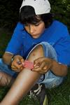Dětské bolístky a jak na ně