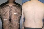 Hedvábná pokožka díky trvalé epilaci