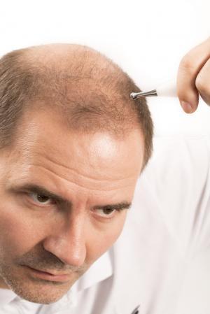 Jak obnovit hustotu svých vlasů? Tři tipy i pro vás